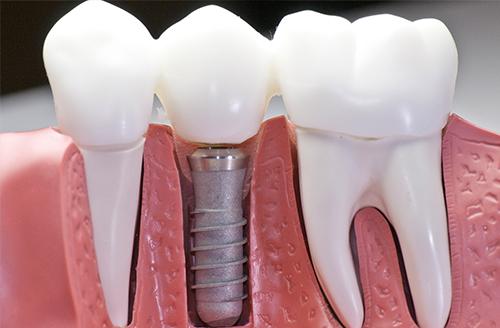 Área de Atuação Implantodontia