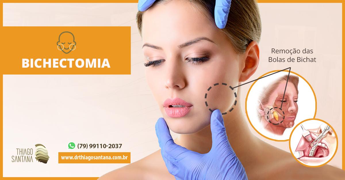 Bichectomina na odontologia