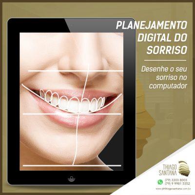 Planejamento Digital do Sorriso: Desenhe o seu sorriso no computador