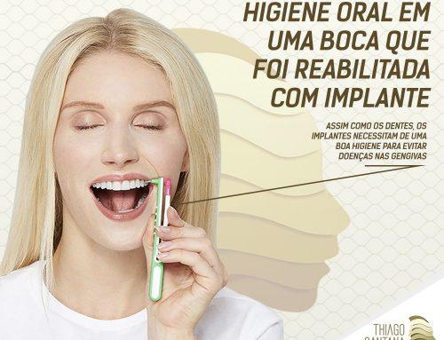 A importância da higiene oral em uma boca que foi reabilitada com implante